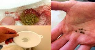 Ceai pentru eliminare pietre la rinichi