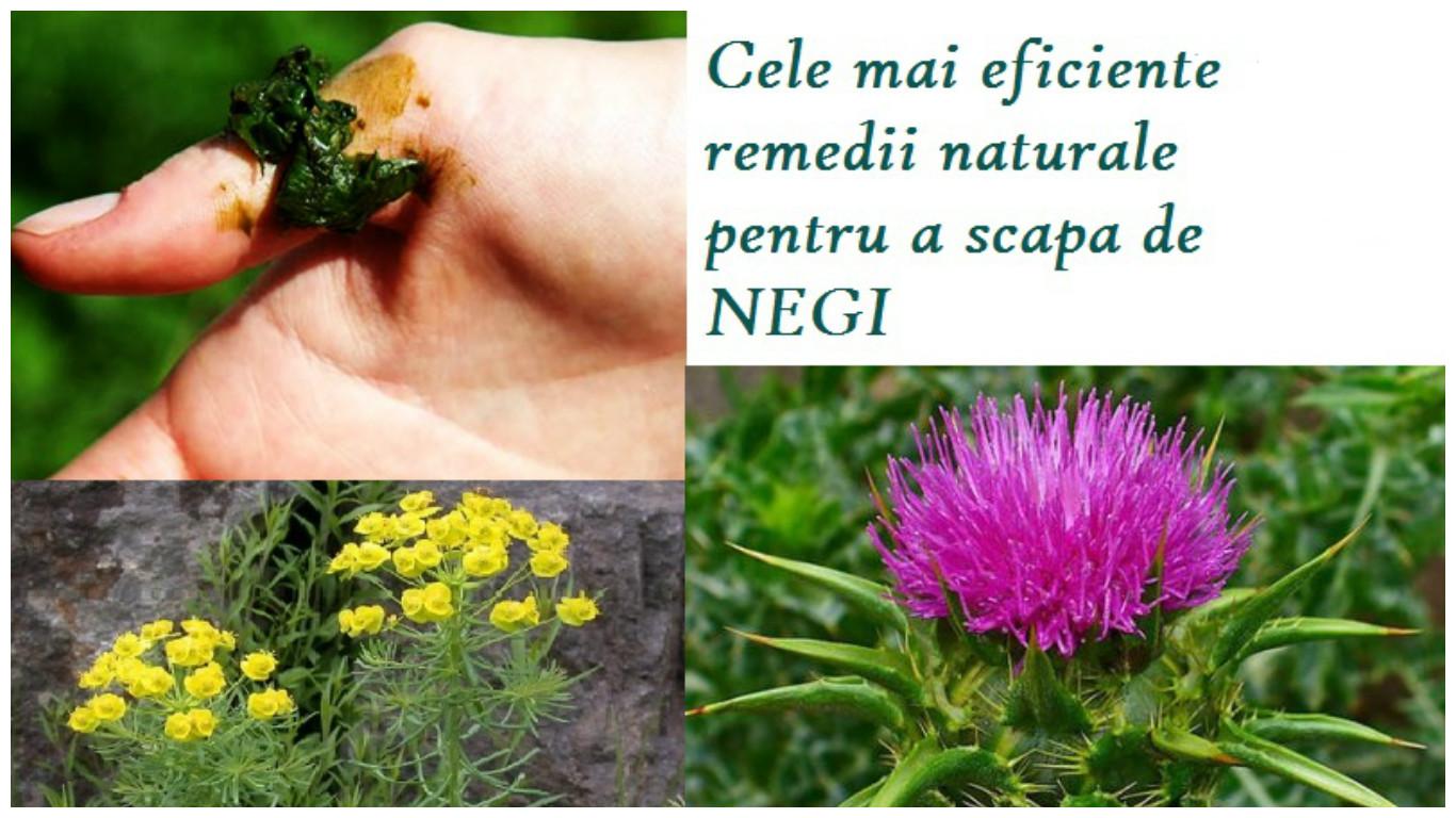 Cele mai eficiente remedii naturale pentru a scapa de negi