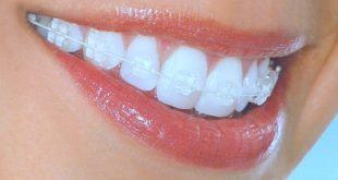 Aparat dentar cu bracketi transparenti