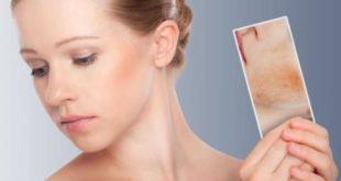 Dermatita atopica alimentatie